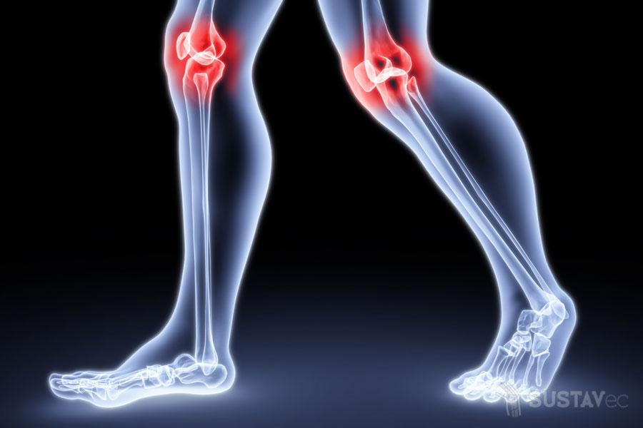 Лечение синовиальной жидкости в коленном суставе 1-4