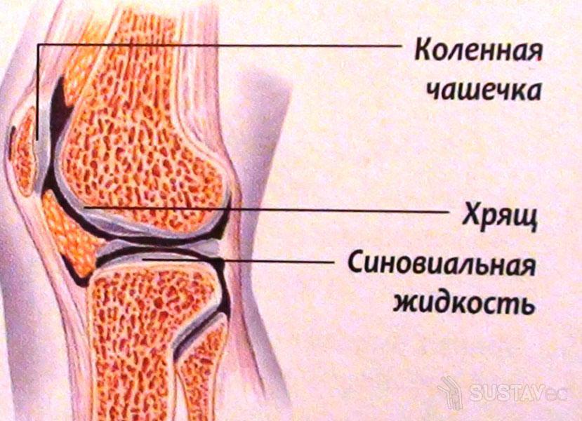 Лечение синовиальной жидкости в коленном суставе 1-7