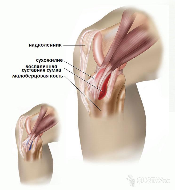 Хондромаляция коленного сустава - что это такое? 10-3