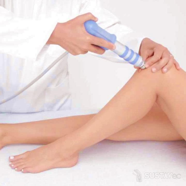 Хондромаляция коленного сустава - что это такое? 10-4