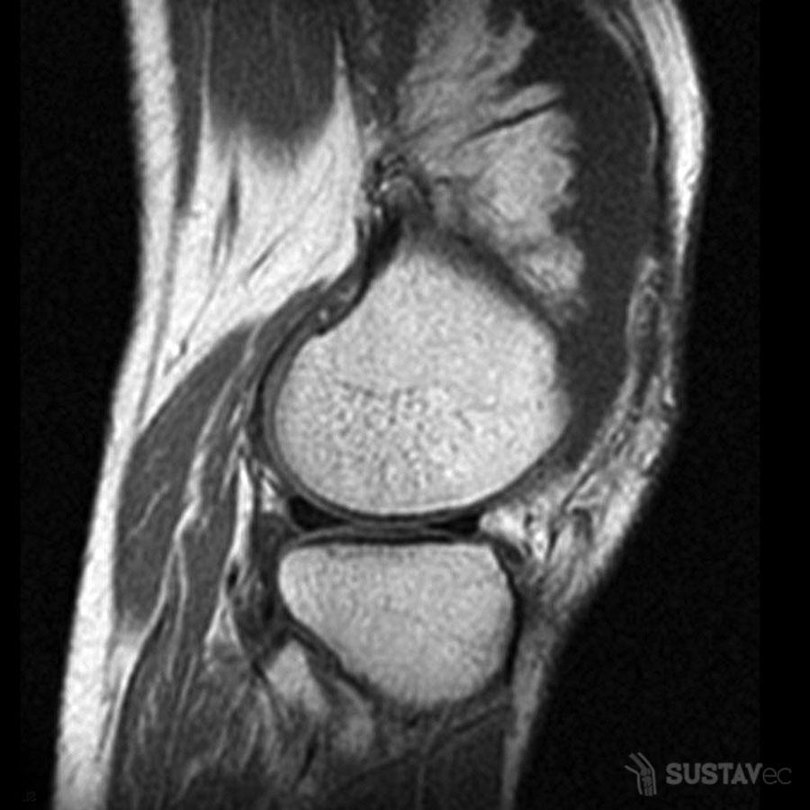 Анатомия коленного сустава и связок: строение на фото 12-5