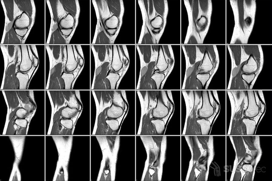 Что показывает МРТ коленного сустава: отличия от УЗИ 14-2