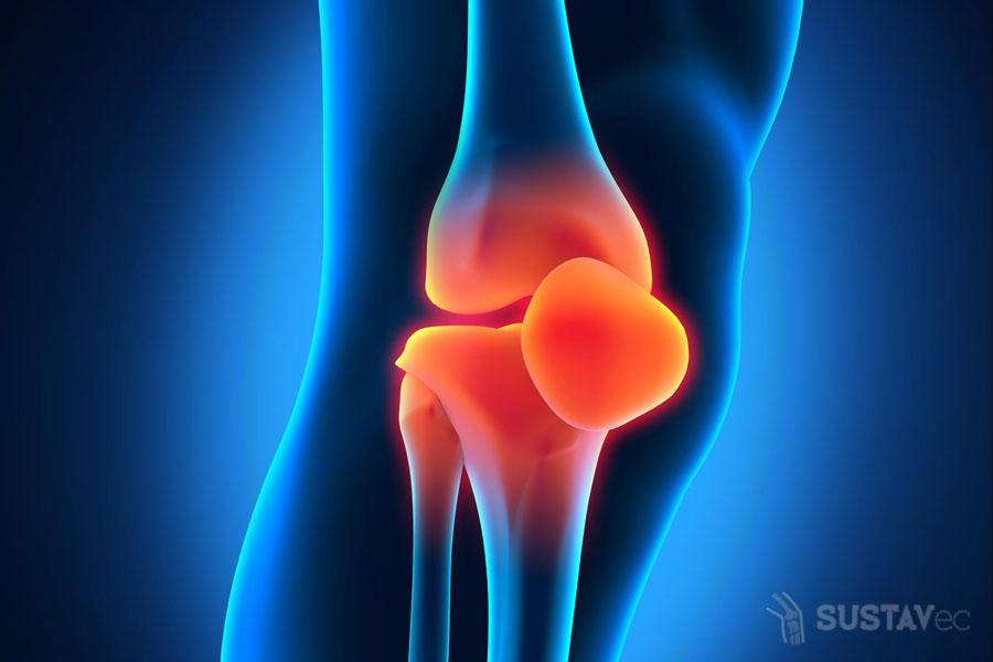 Что показывает МРТ коленного сустава: отличия от УЗИ 14-6