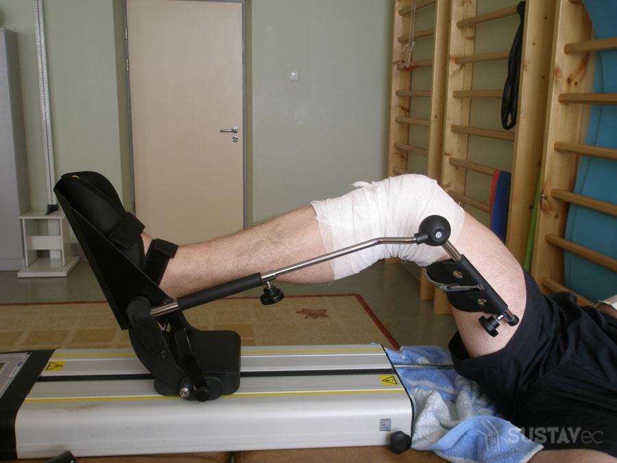 Реабилитация после операции эндопротезирования коленного сустава: периоды восстановления 15-3