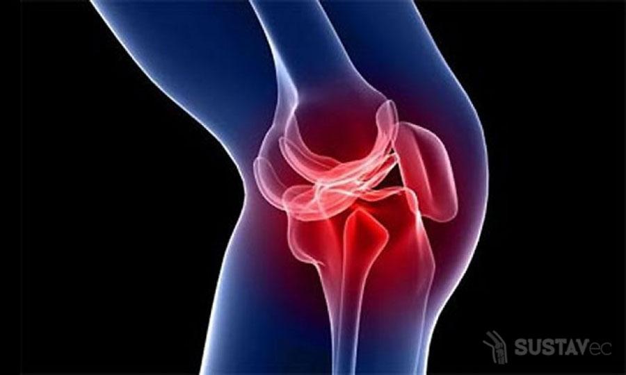 Симптомы и лечение супрапателлярного бурсита коленного сустава 18-2