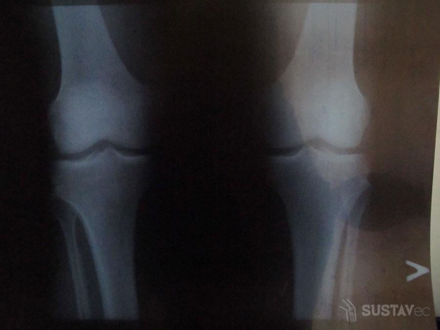 Лигаментоз коленного сустава - что это такое? 6-4