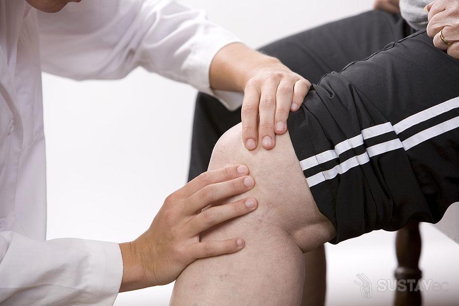 Киста Бейкера коленного сустава: размеры для операции 7-2
