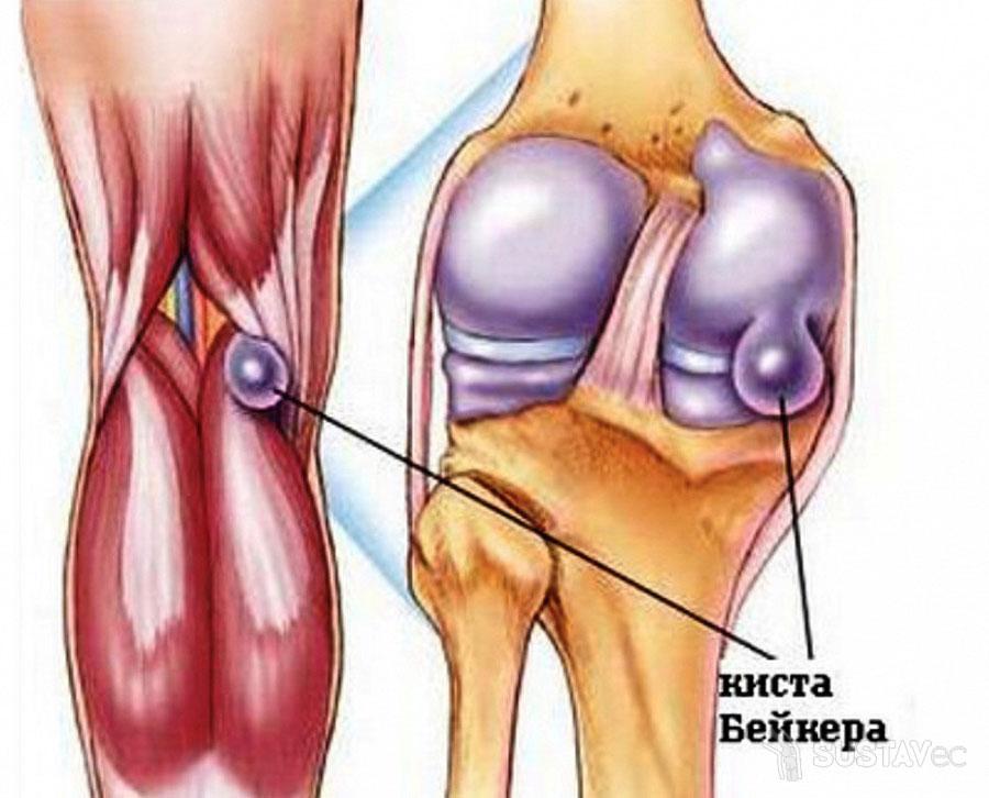 Киста Бейкера коленного сустава: размеры для операции 7-3