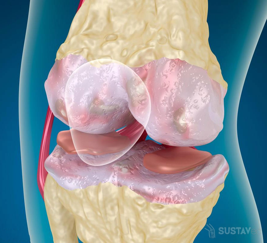 Киста Бейкера коленного сустава: размеры для операции 7-4