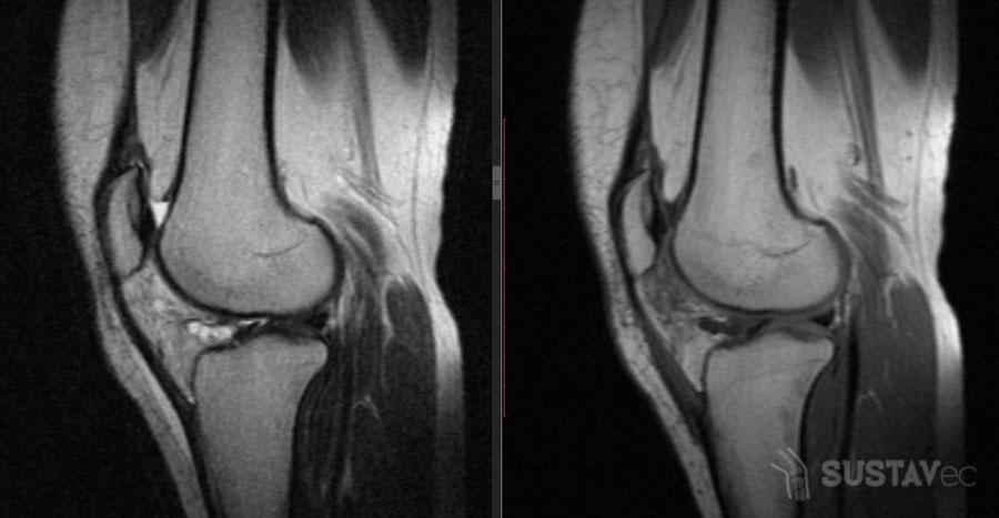 Лечение болезни Гоффа коленного сустава: проверенные методики 8-4