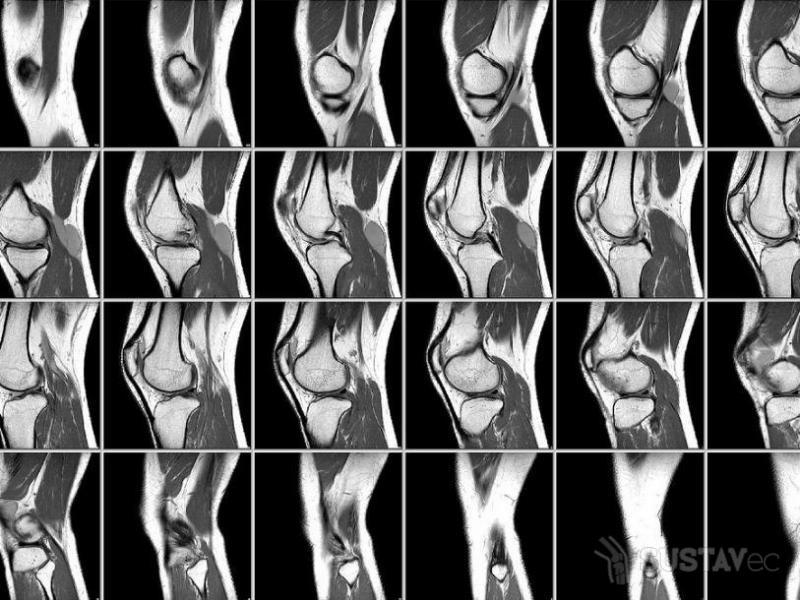 Остеопороз коленного сустава: симптомы и лечение 9-4