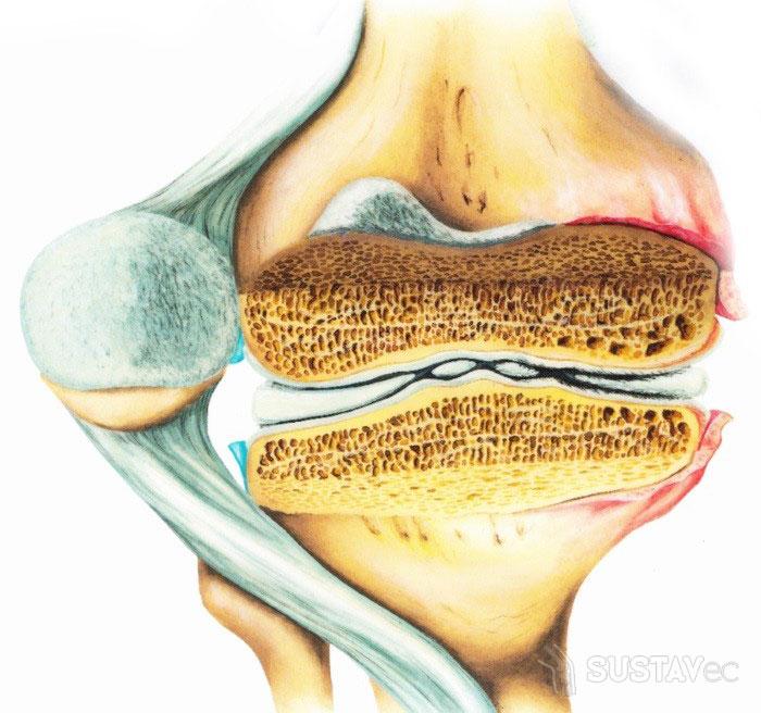 Остеопороз коленного сустава: симптомы и лечение 9-5
