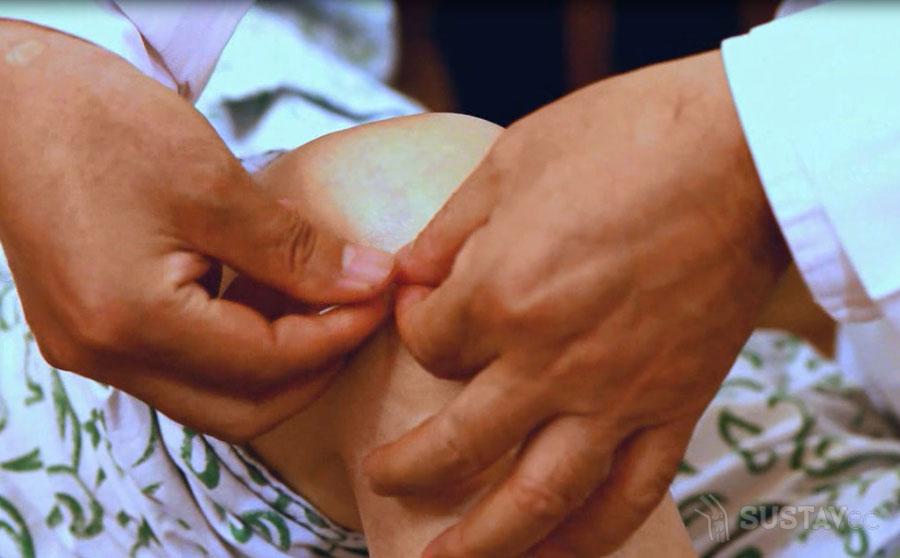 Симптомы и лечение повреждения мениска коленного сустава 19-3