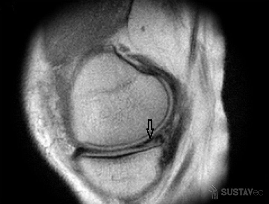 Симптомы разрыва мениска и виды травм колена 21-2