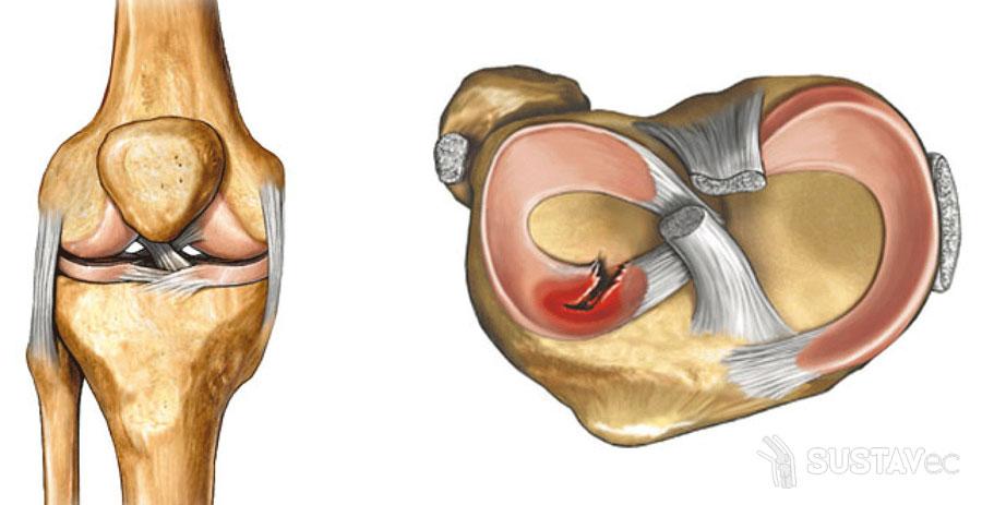 повреждения и переломы коленного сустава