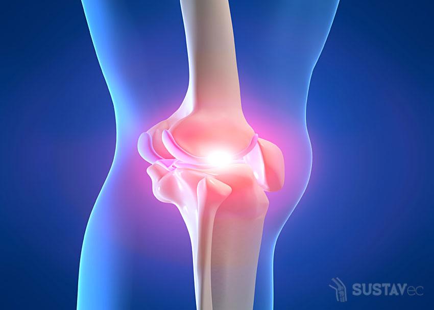 Симптомы и лечение воспаления коленного сустава: топ 6 методик 24-3