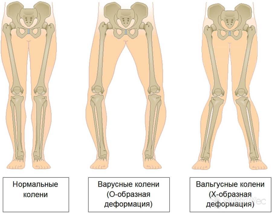 Вальгусная деформация коленных суставов: 4 методики лечения 27-2