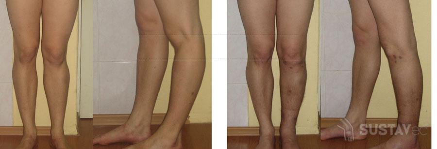 Вальгусная деформация коленных суставов: 4 методики лечения 27-4