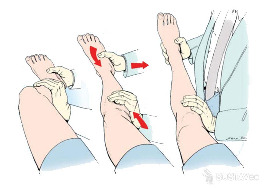 Нестабильность коленного сустава: как помочь колену? 28-2