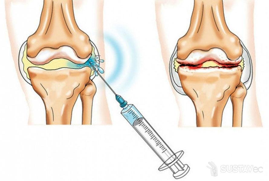 Внутрисуставные инъекции в коленный сустав: 5 лучших средств 29-2