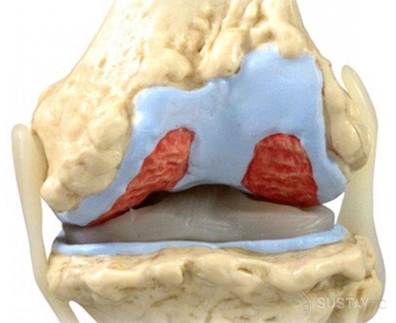 Лечение народными средствами при жидкости в коленном суставе: 5 лучших рецептов 33-2