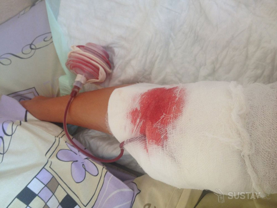 Откачивание жидкости из коленного сустава: как проходит процедура? 34-3