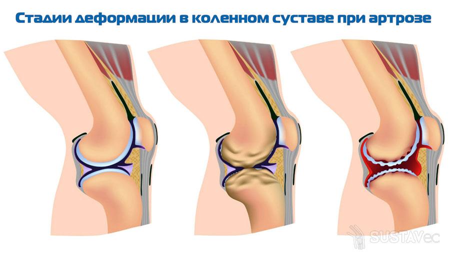 Лечение деформирующего остеоартроза коленного сустава 2 степени ...