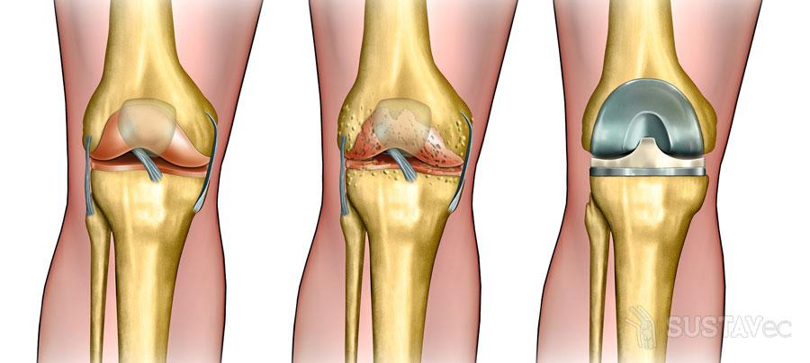 Остеофиты коленного сустава - что это такое? 39-3