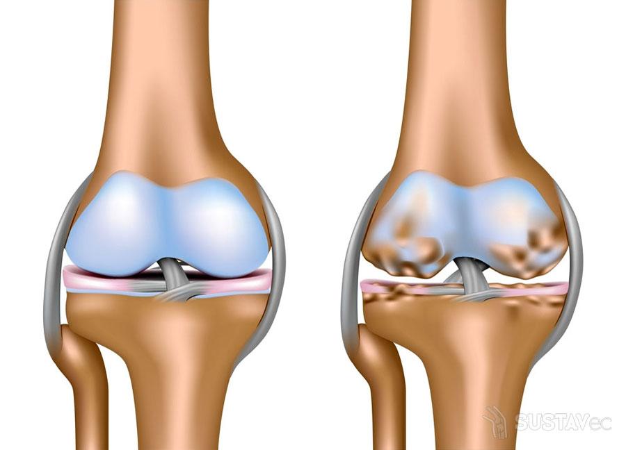 Таблетки от артроза коленного сустава: 16 лучших препаратов 41-3