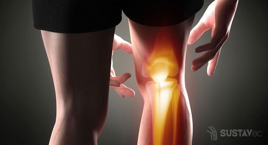 Симптомы и лечение периартрита коленного сустава 42-3