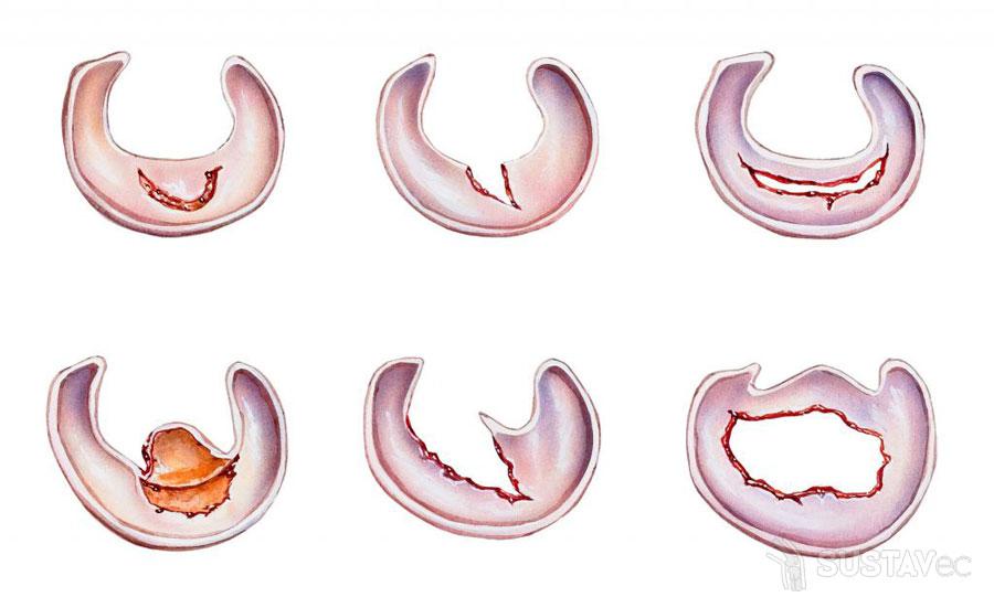 Последствия удаления мениска коленного сустава и методики восстановления 43-3