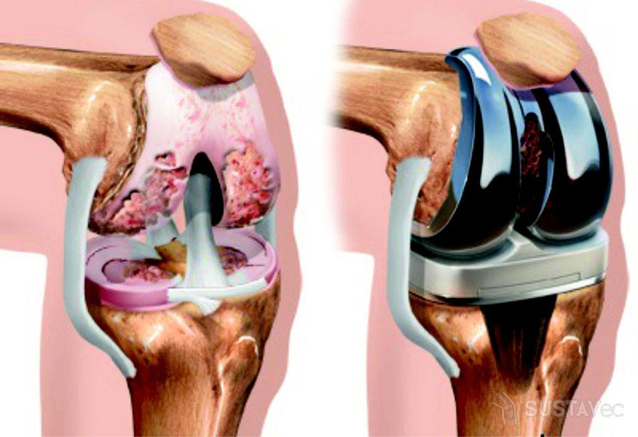 Артрит коленного сустава 2 степени Суставы