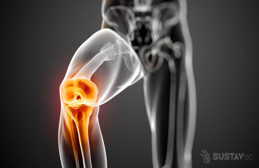 Признаки гонартроза коленного сустава: не пропусти первые симптомы 45-2