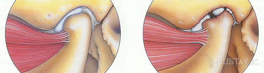 Перекись водорода в лечении артроза