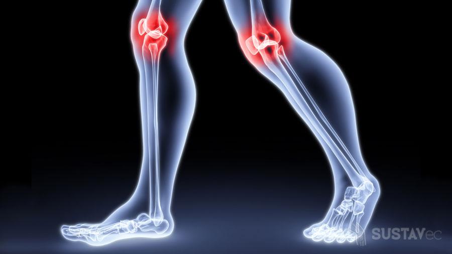 Лечение артрита и артроза коленного сустава: 7 лучших способов 47-3