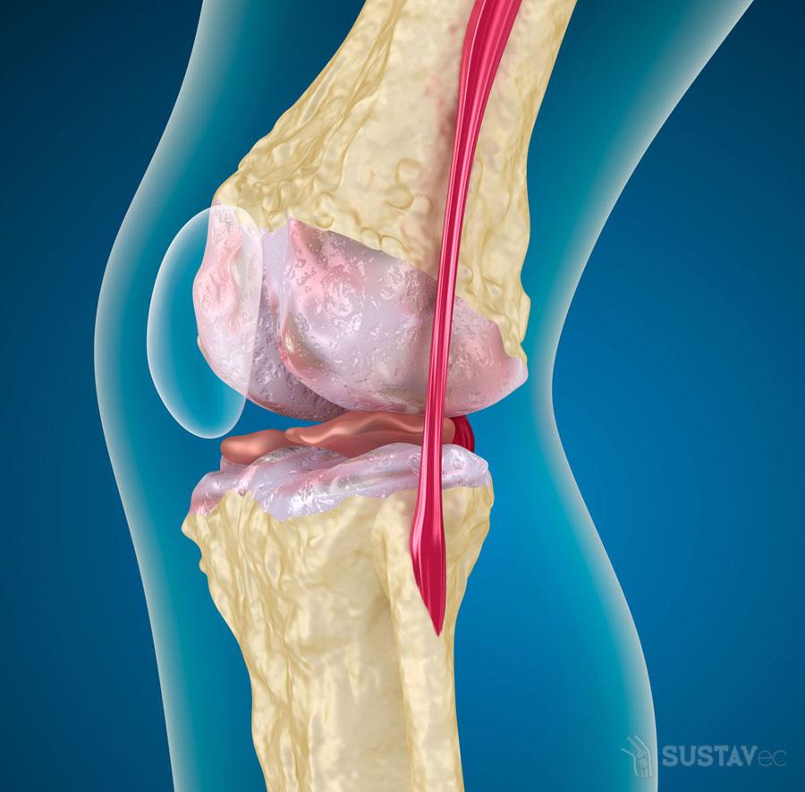 Хондропротекторы при артрозе коленного сустава: принцип работы 48-2