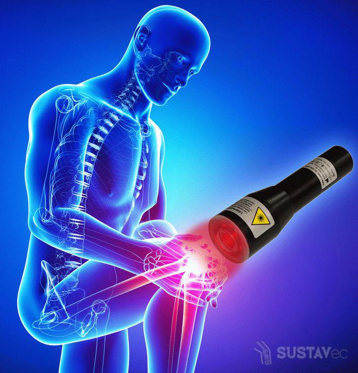 Хондропротекторы при артрозе коленного сустава: принцип работы 48-4