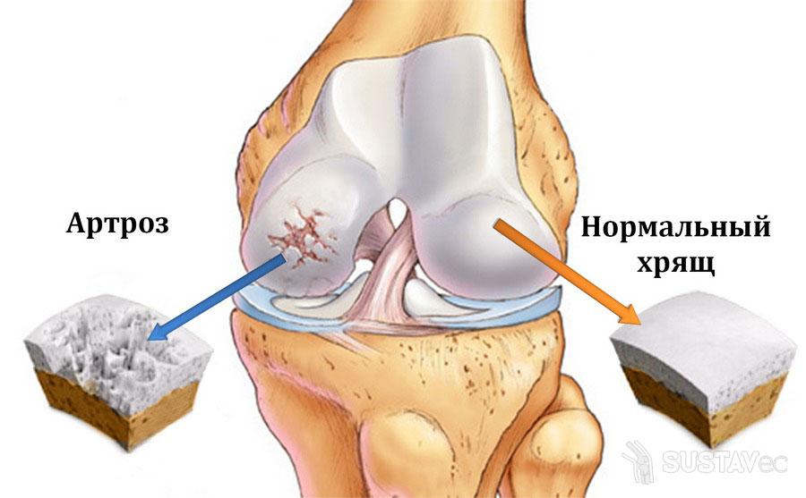 Коксартроз коленного сустава: симптомы и лечение 49-2