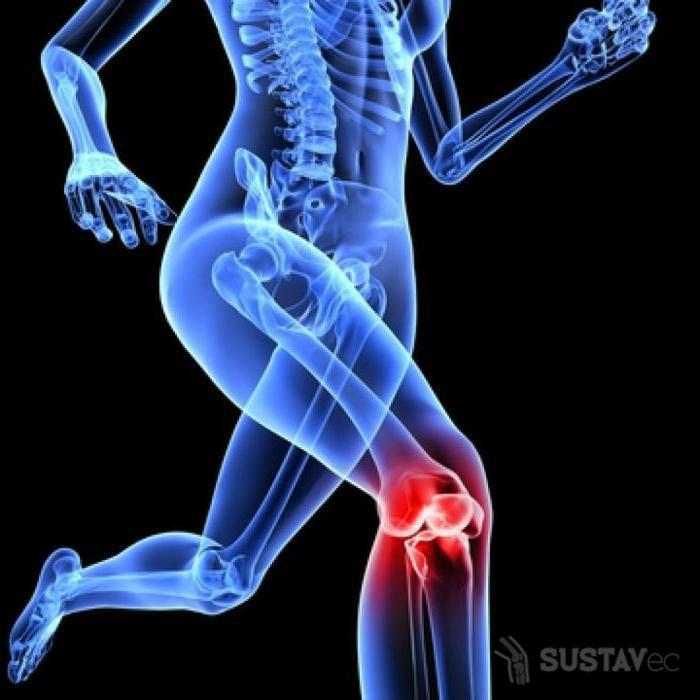Лечение артроза коленного сустава 1 степени: 4 лучших методики 51-3