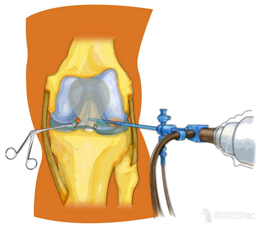 Лечение реактивного артрита коленного сустава: ТОП 3 действенные методики 53-3