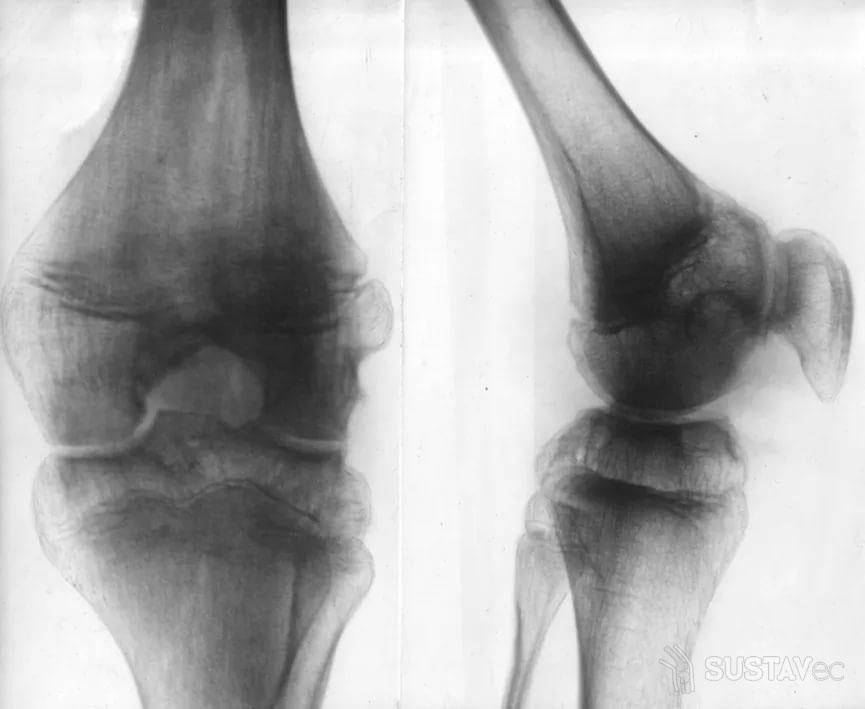 Хондроматоз коленного сустава: лечение и своевременная диагностика 55-2