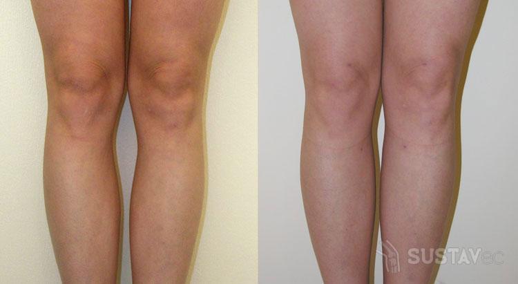 Варусная деформация коленных суставов: причины и лечение 58-3