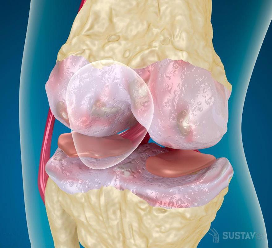 Лечение кисты Бехтерева в коленном суставе: 2 лучших методики 60-3