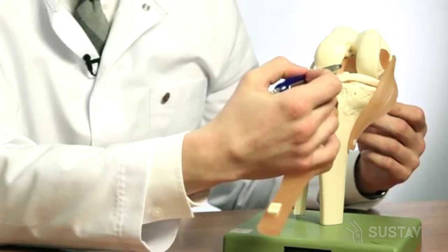 Лечение разрыва связок коленного сустава: ТОП 9 рекомендаций 61-4