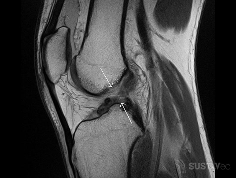 Надрыв связок коленного сустава: 5 методик лечения 63-4