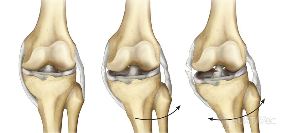 Частичный разрыв передней крестообразной связки коленного сустава: нужна ли операция? 64-2