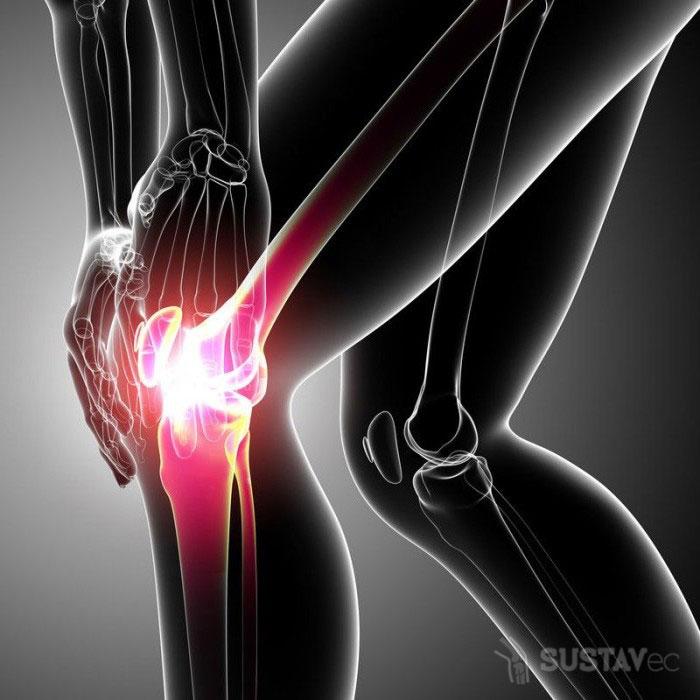 Частичный разрыв передней крестообразной связки коленного сустава: нужна ли операция? 64-3