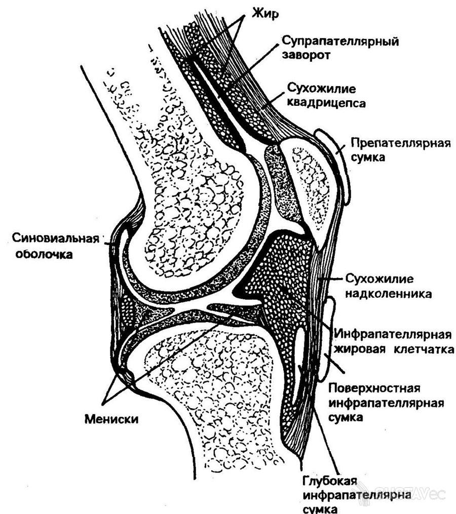 Выпот в коленном суставе: от лечения до реабилитации 67-2