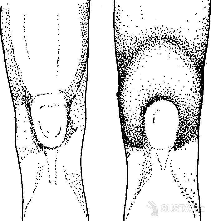Выпот в коленном суставе: от лечения до реабилитации 67-3