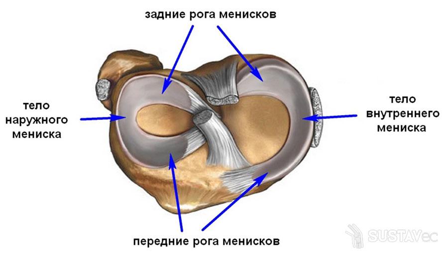 Повреждение заднего рога медиального мениска: ТОП 5 методик лечения 69-2
